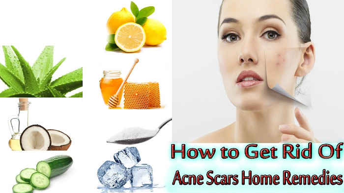 15 Surprising Natural Remedies To Get Rid Of Acne Scars